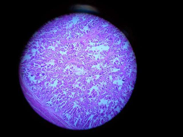 Prostate Histology slide