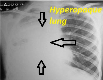 Hyperopaque lung