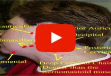 Lymph Node Examination: Head and Neck | Clinical Skills